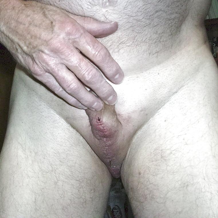 Голый Кастрированный Мужик