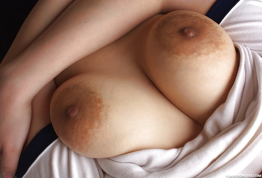 Breast swelling and inflammatory breast cancer