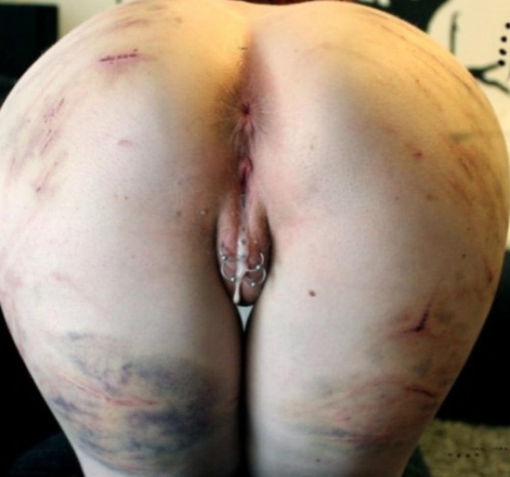 Bruised Cunt
