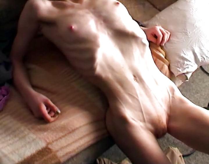 Фото порно анорексия — 4