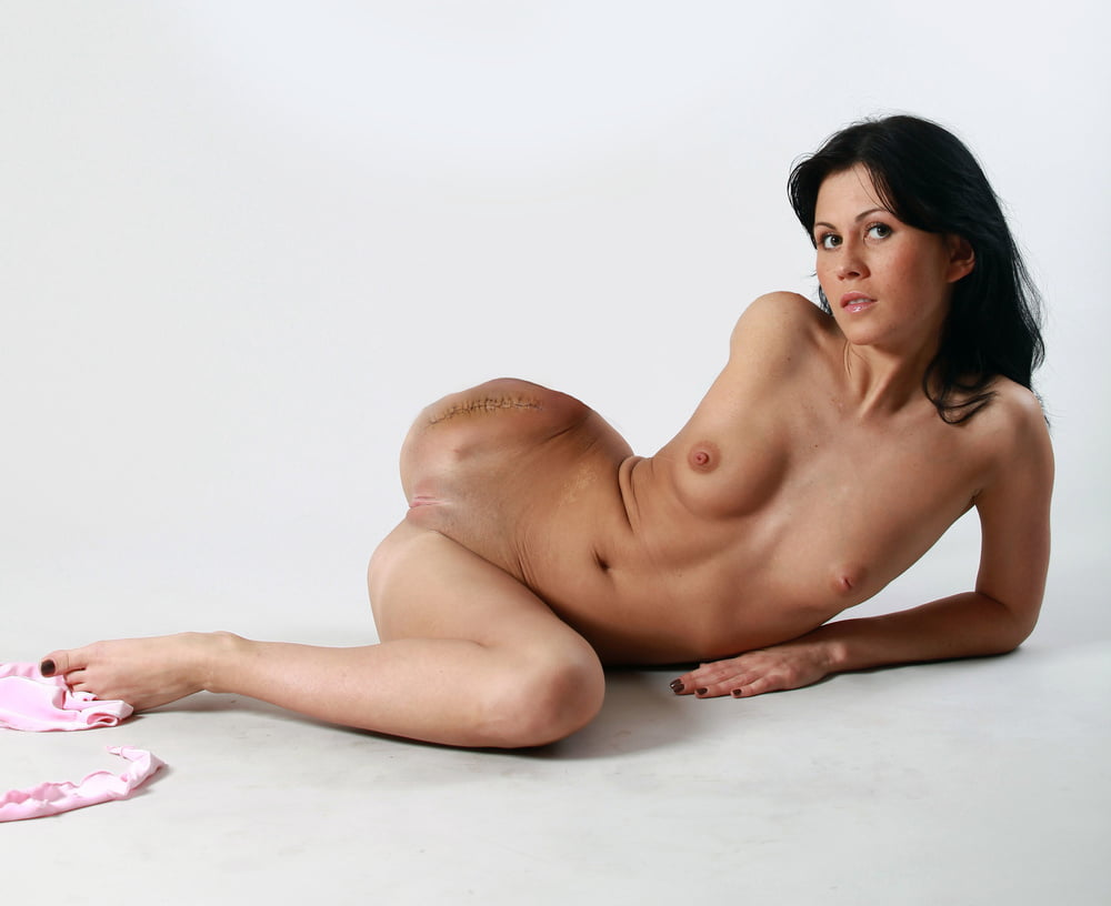 amputee-femalesex-juicy-women-xxx