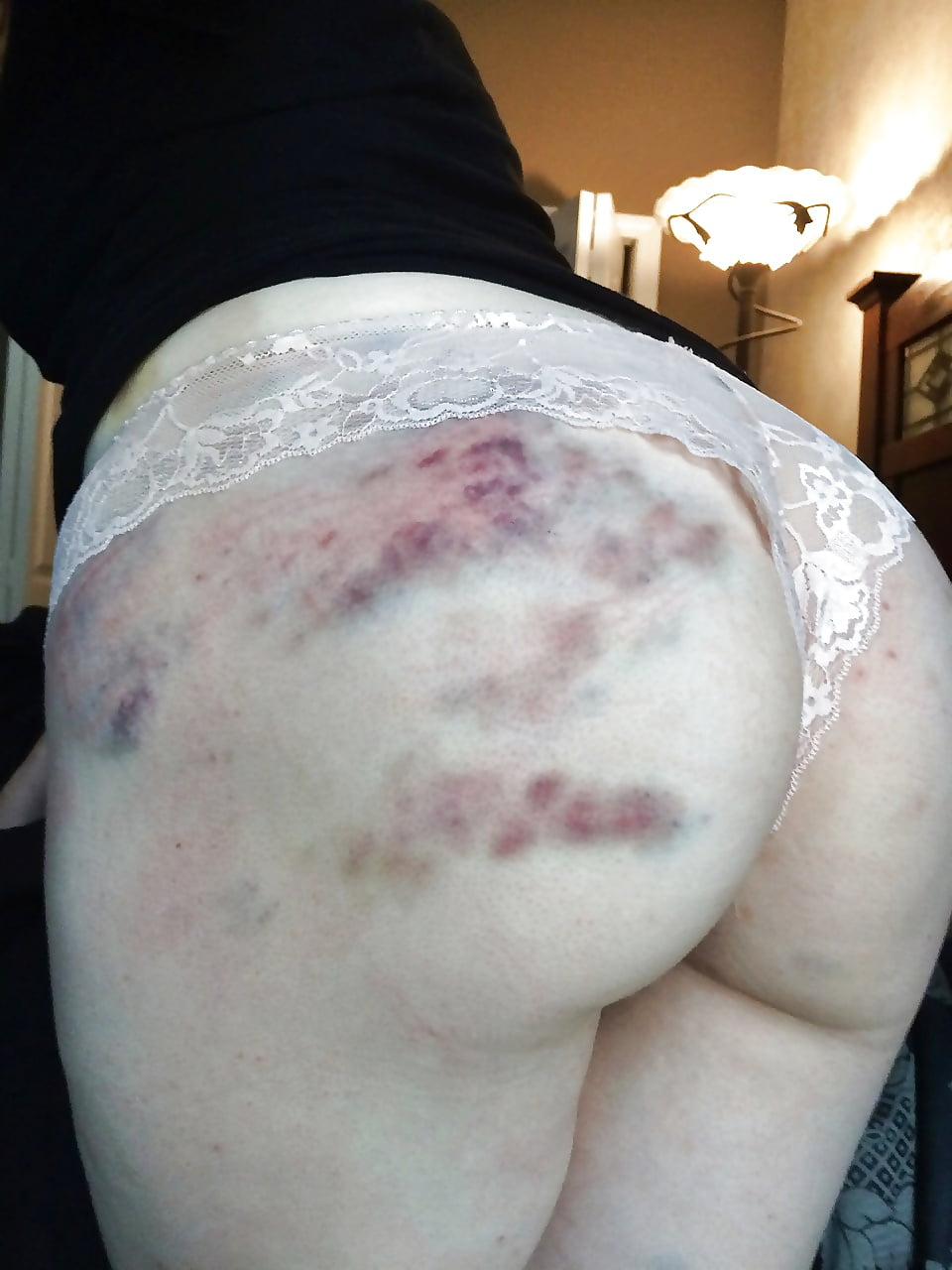 bruising Bdsm ever acceptable is