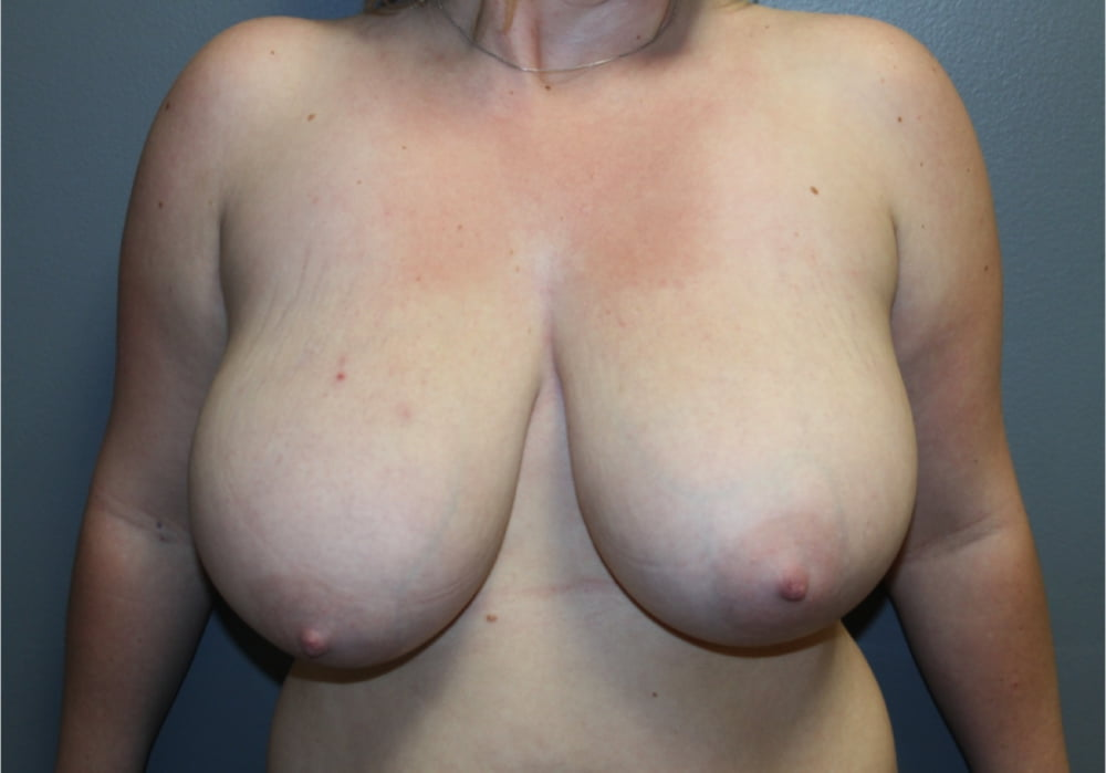 Top plastic surgeons for breast reduction