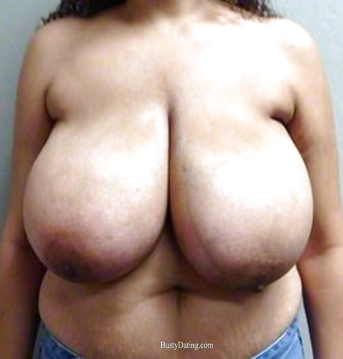 Breast lift areola reduction cost-4662