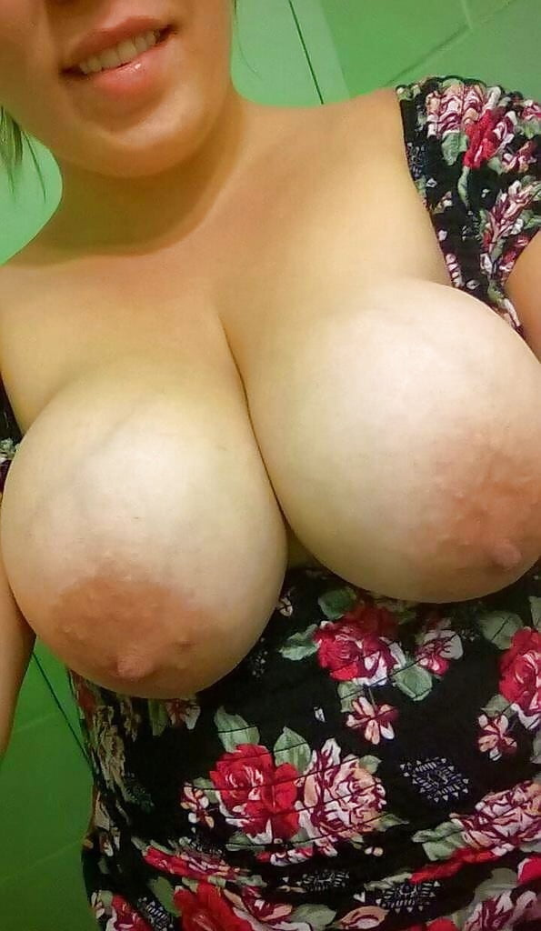 Swollen breasts but not pregnant