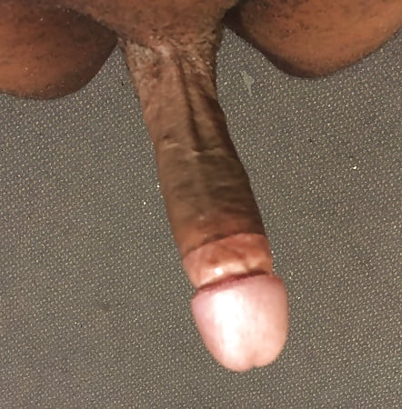 never seen a circumcised dick I