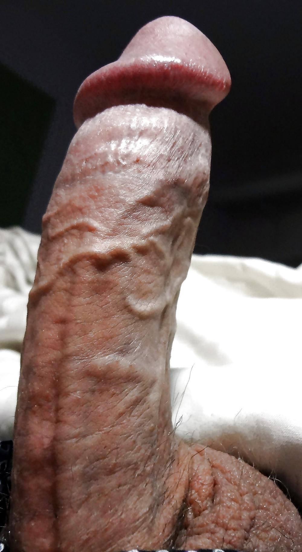 Вены пениса в фото — img 11