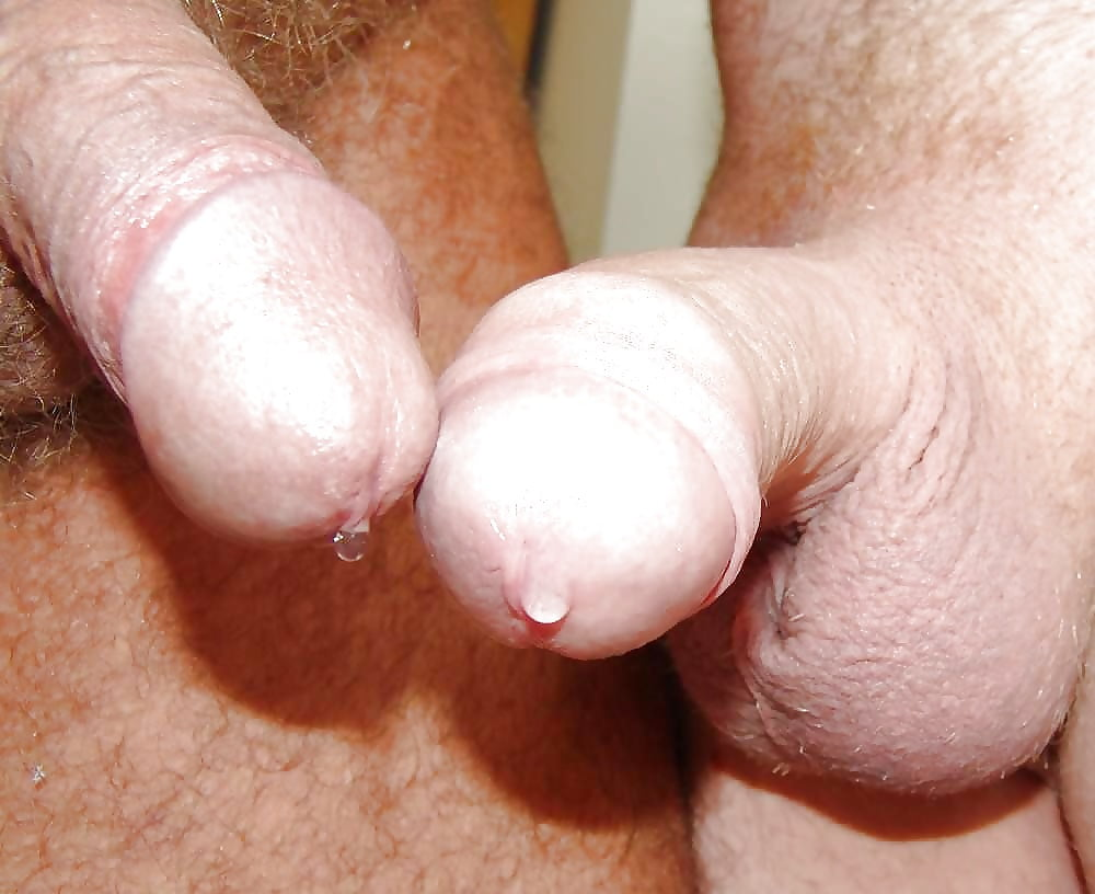 Male yeast infection causes symptoms