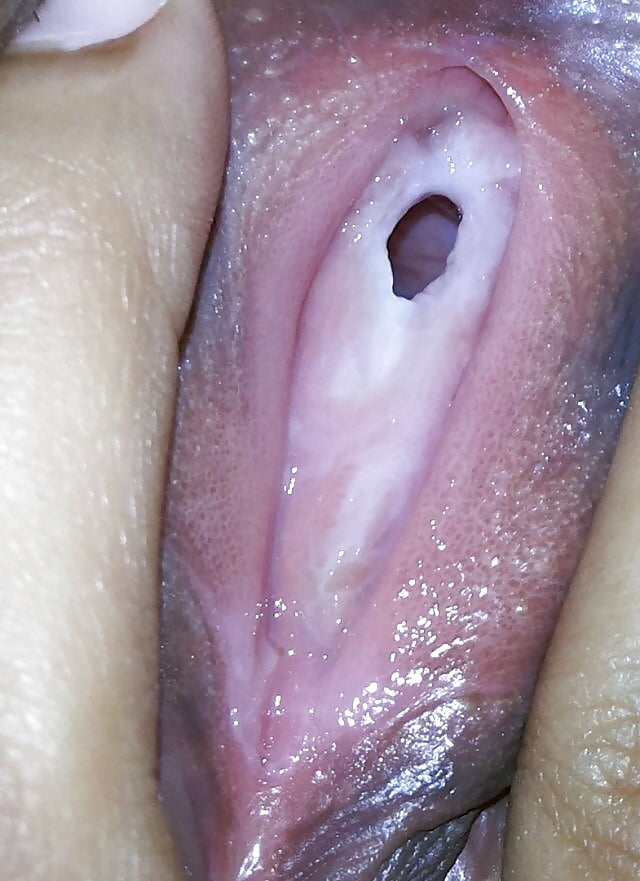 Brown mucous vaginal discharge