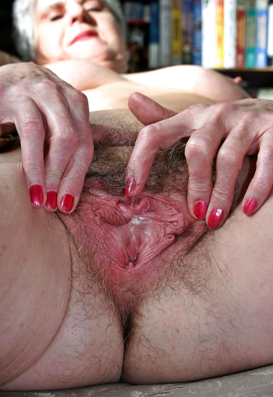 Фото вагины у пожилой женщины — pic 6