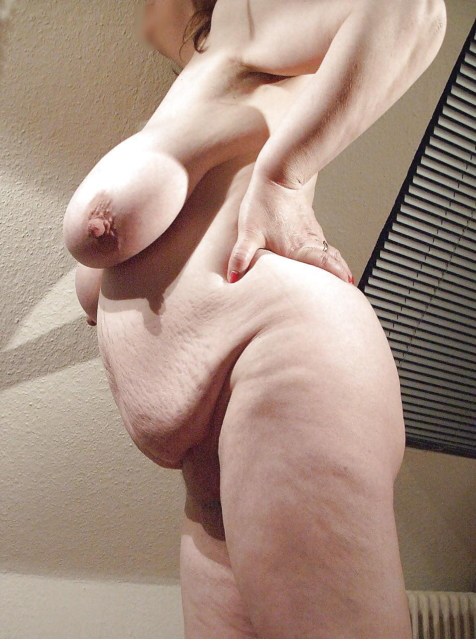 Stretch mark tits nude — photo 14