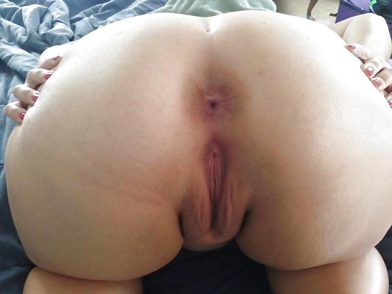 женский открытый анус жирной жопы фото излечения