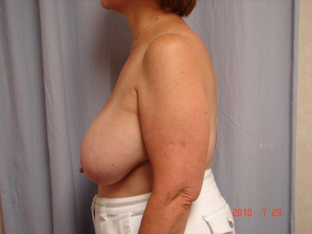 Good breast reduction surgeons