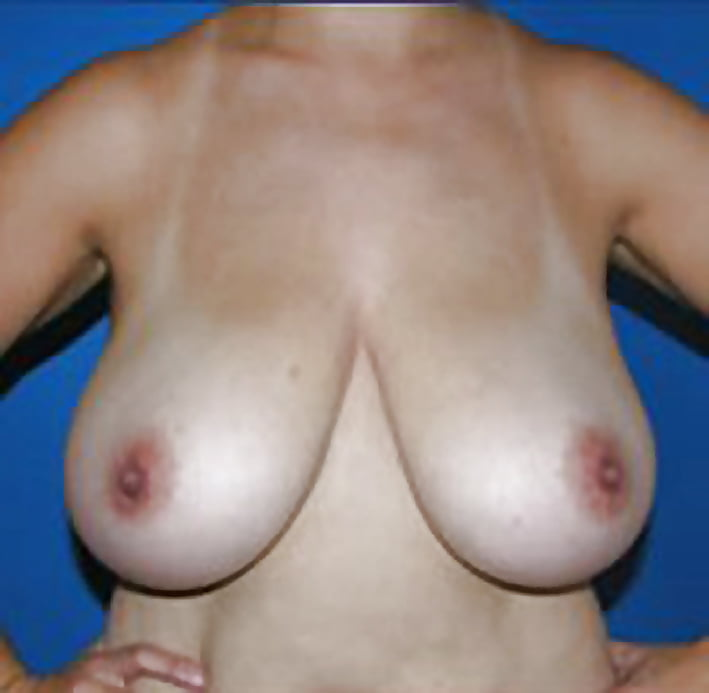 Breast lift areola reduction cost-8420