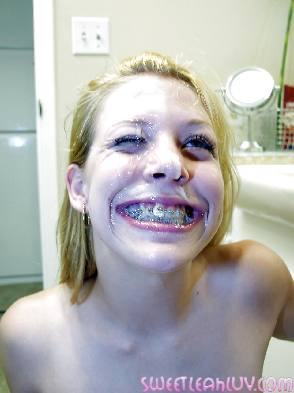 York teens with braces cumshot malloys